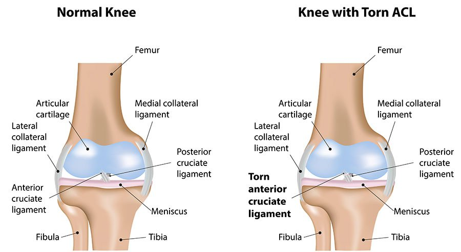 Image of normal knee and knee with torn ACL