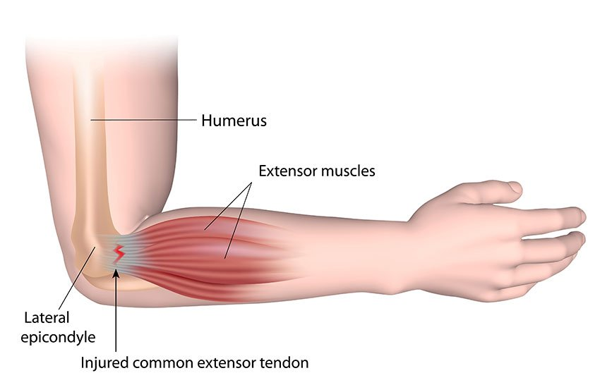 Lateral Epicondylitis Tennis Elbow Lawrence Memorial Hospital
