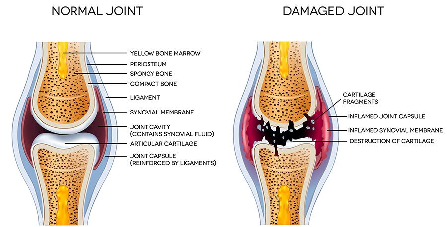 Knee joint images