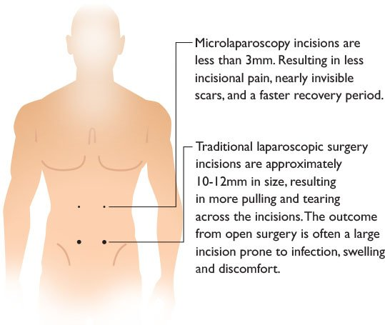 Microlaparoscopy Surgery