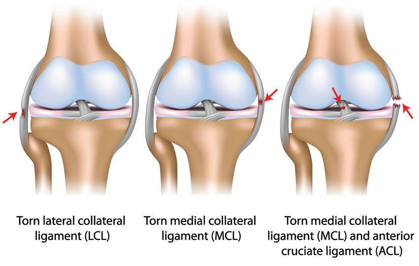 Images of torn LCL MCL and ACL